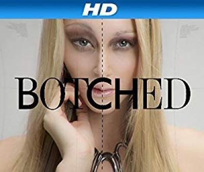 Botched S05E06 Nothing Butt Trouble 720p HDTV x264-CRiMSON